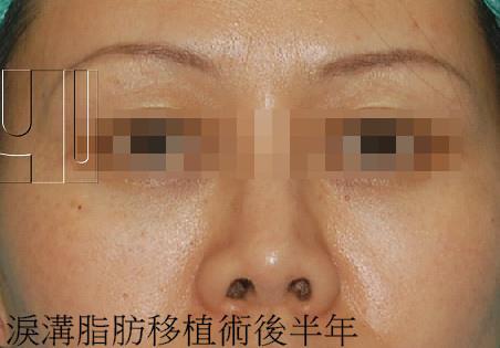 奈米脂肪移植(nanofat graft )在淚溝與蘋果肌的應用(蕭敦恆)