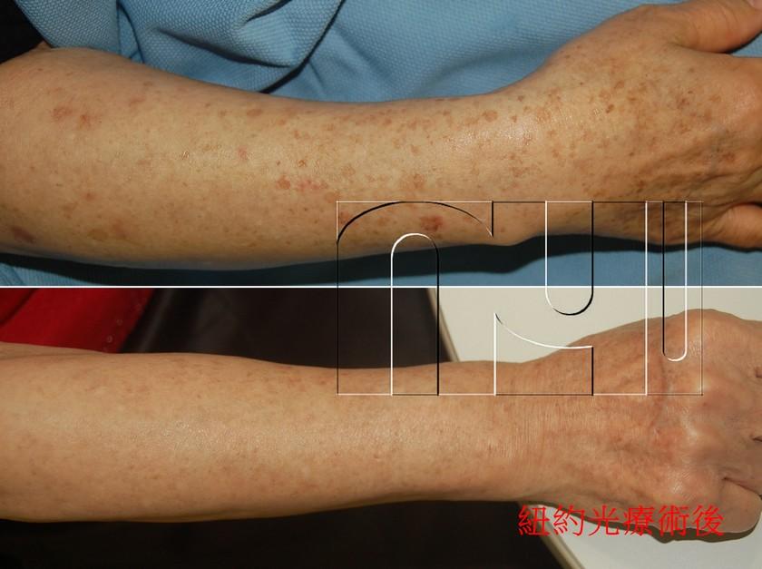 短袖殺手–曬斑的治療(蕭敦恆)